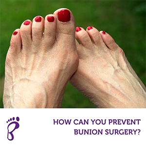 How Can You Prevent Bunion Surgery?