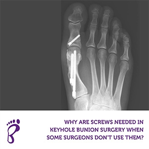 Why are screws needed in keyhole bunion surgery when some surgeons don't use them?