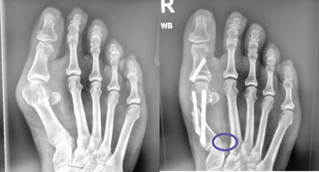 Bunion Recurrence After Surgery